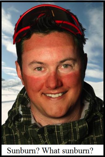 ski goggle sunburn